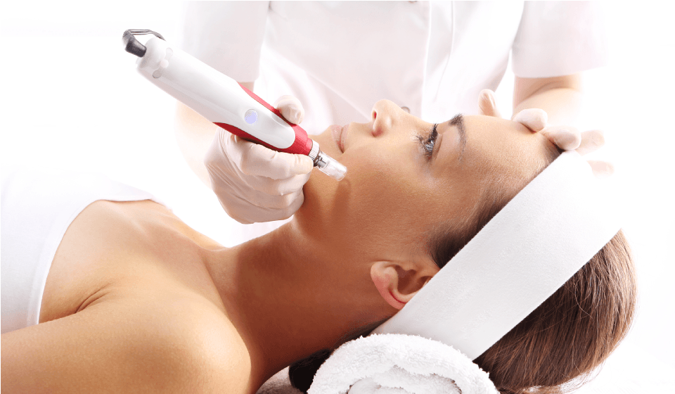 Microneedling with PRP Puyallup