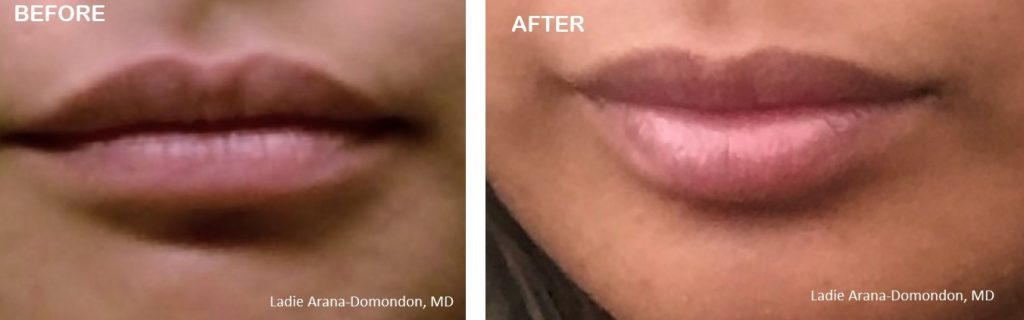 lip injections puyallup